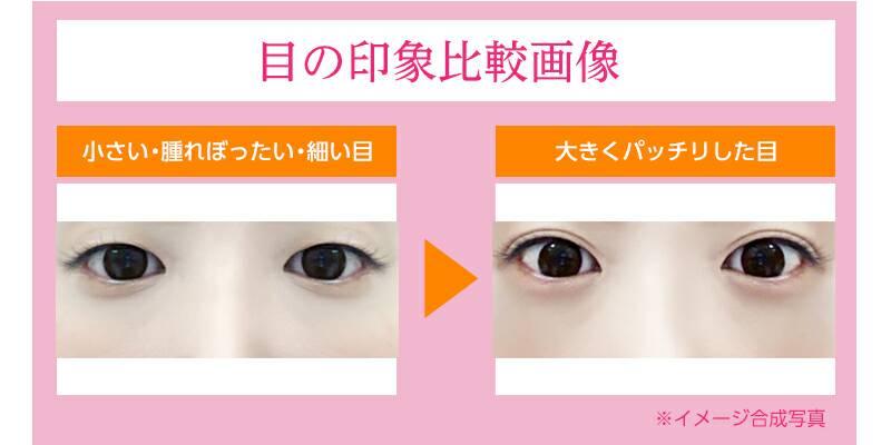 目の印象比較画像